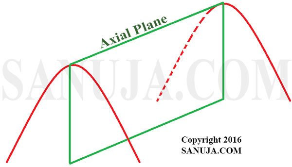 Axial plane is indicated in green, which cut across the fold.